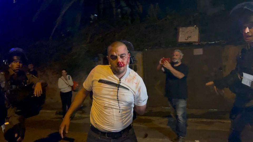 اعتداء على مواطن في حي الشيخ جراح.jpg